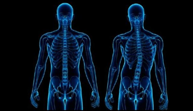 kuva skolioosin aioheuttamasta vinosta selkärangasta